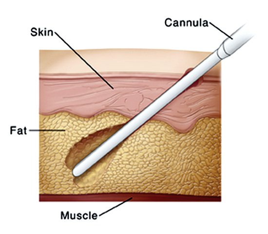 Image result for liposuction procedure